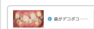 歯がデコボコ……